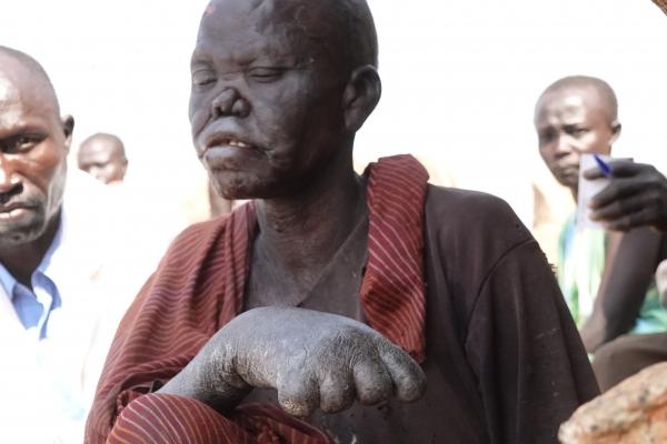 150-sudanska-vlada-ne-dovoli-podruznica-who-v-kartumu-dobavljati-zdravila-v-nubske-goreDECBFCED-AD41-4BB5-3102-4ED0B8A4FCB3.jpg